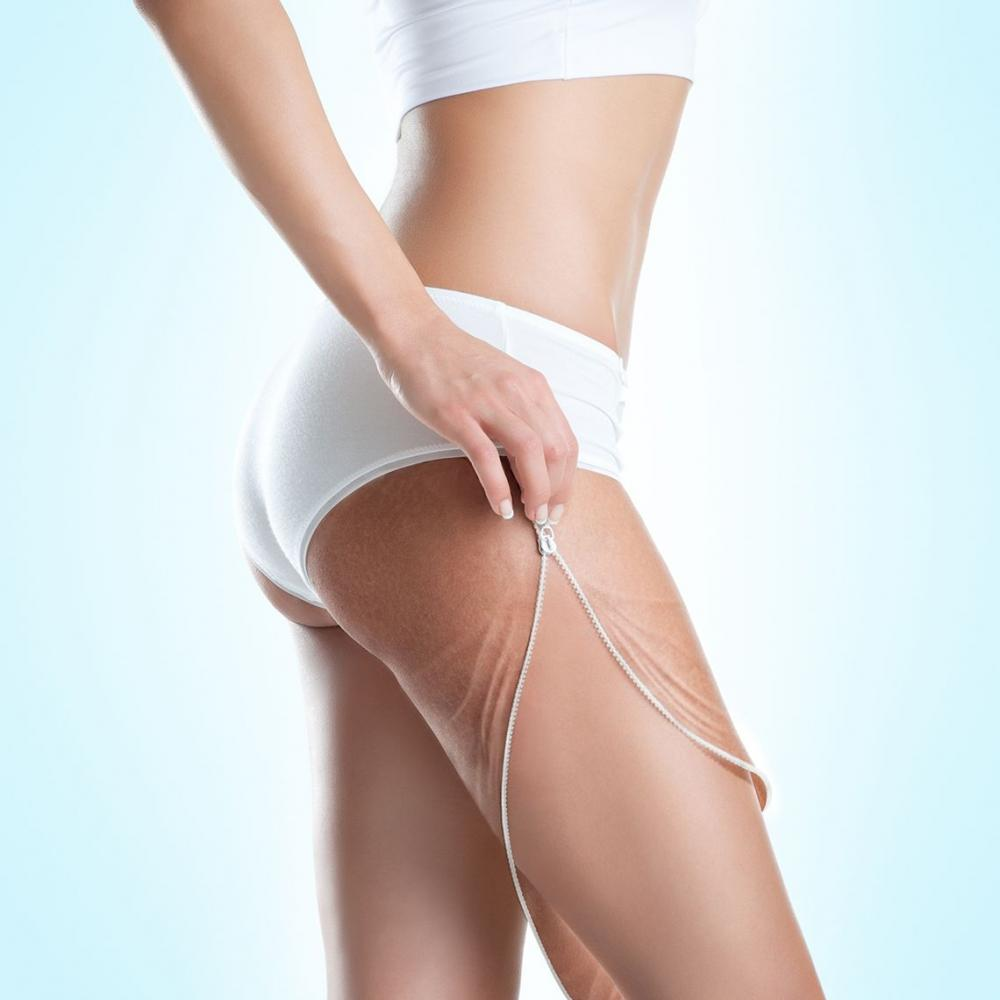 Top 4 Cellulite Treatments for Women
