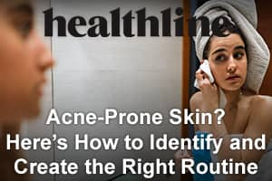 Acne-Prone Skin? Here's How to Identify and Create the Right Routine
